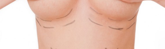 Opération d'augmentation mammaire